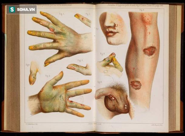 Độc tố chết người vừa được tìm thấy trong 3 cuốn sách cổ ở châu Âu: Nó nguy hiểm mức nào? - Ảnh 1.