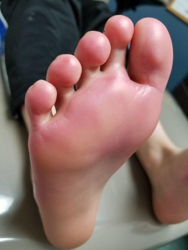 Bàn chân bé trai bỏng độ 2, đau đớn chẳng thể đi lại, bác sĩ kết luận đôi giày chính là thủ phạm - Ảnh 2.