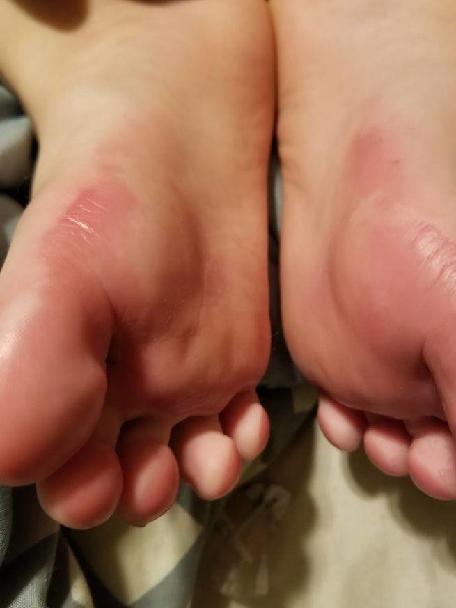 Bàn chân bé trai bỏng độ 2, đau đớn chẳng thể đi lại, bác sĩ kết luận đôi giày chính là thủ phạm - Ảnh 3.