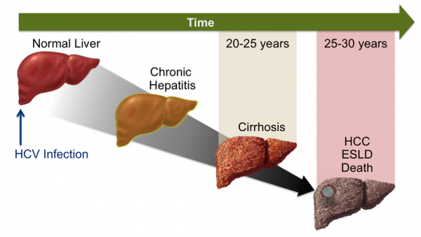 Viêm gan C: Tăng nguy cơ mắc ung thư gan và các bệnh ung thư khác - Ảnh 1.