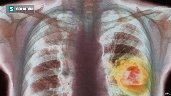 Người có 6 thói quen này có tỉ lệ mắc ung thư phổi rất cao: Hãy xem có bạn không để tránh! - Ảnh 1.