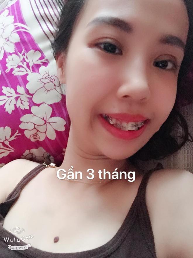Bị bạn bè trêu chọc vì teo nửa bên mặt, cô gái Hà Nội lột xác sau phẫu thuật thẩm mỹ - Ảnh 11.
