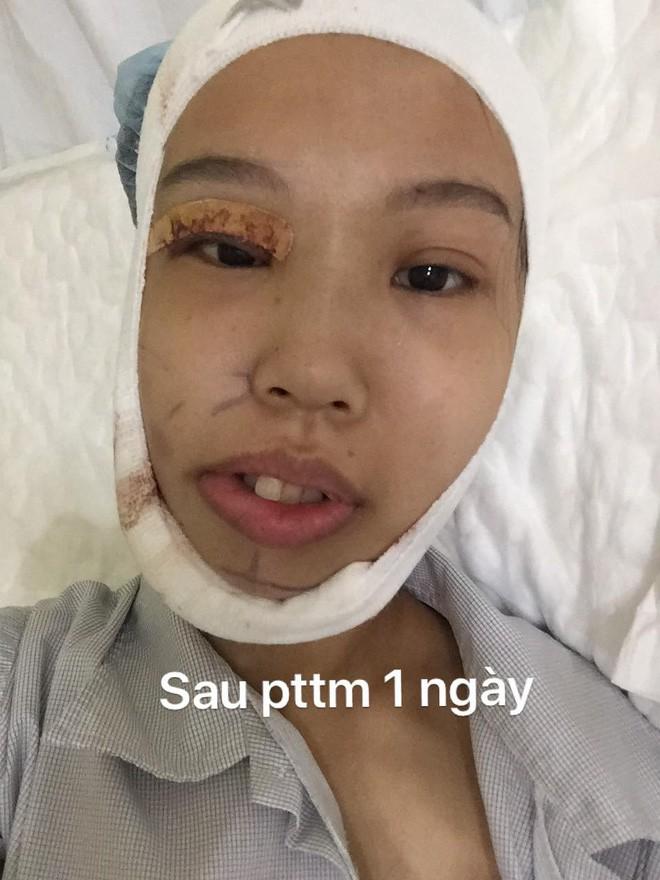 Bị bạn bè trêu chọc vì teo nửa bên mặt, cô gái Hà Nội lột xác sau phẫu thuật thẩm mỹ - Ảnh 5.