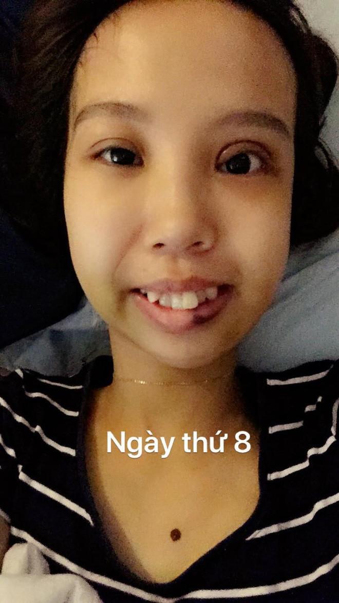 Bị bạn bè trêu chọc vì teo nửa bên mặt, cô gái Hà Nội lột xác sau phẫu thuật thẩm mỹ - Ảnh 6.