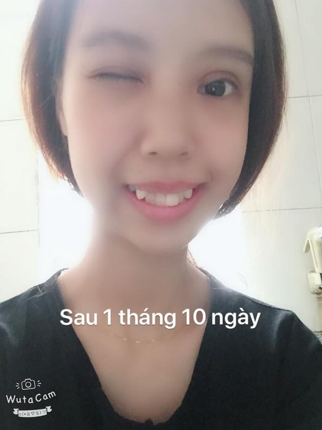 Bị bạn bè trêu chọc vì teo nửa bên mặt, cô gái Hà Nội lột xác sau phẫu thuật thẩm mỹ - Ảnh 8.