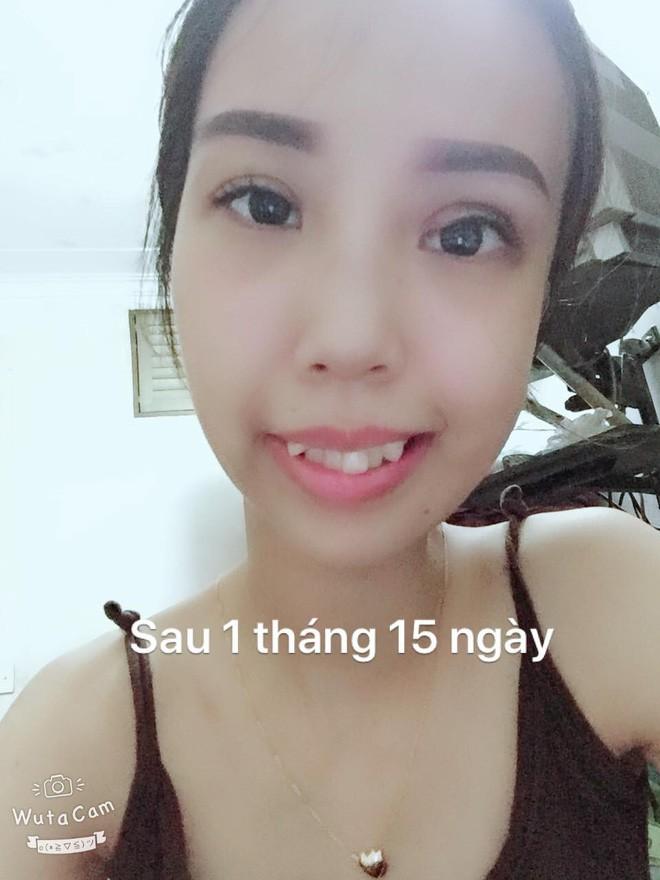 Bị bạn bè trêu chọc vì teo nửa bên mặt, cô gái Hà Nội lột xác sau phẫu thuật thẩm mỹ - Ảnh 9.