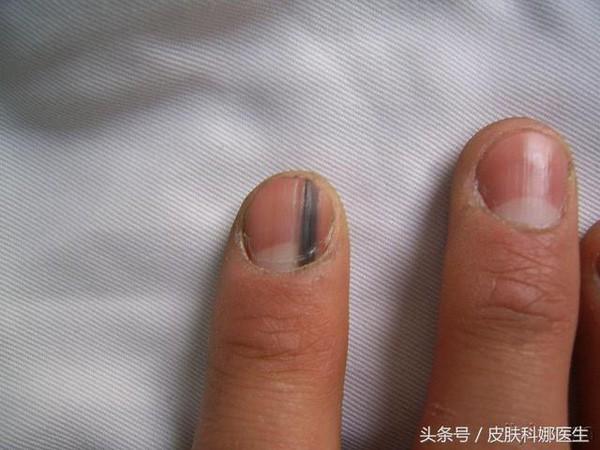 Thấy móng tay có hình dáng kì lạ, người phụ nữ đi khám thì biết mình bị bệnh ung thư phổi: Dấu hiệu ở móng tay cảnh báo bệnh - Ảnh 3.