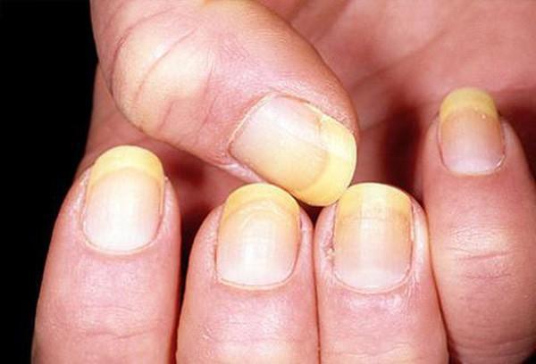 Thấy móng tay có hình dáng kì lạ, người phụ nữ đi khám thì biết mình bị bệnh ung thư phổi: Dấu hiệu ở móng tay cảnh báo bệnh - Ảnh 4.