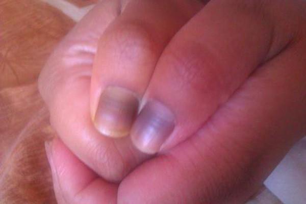 Thấy móng tay có hình dáng kì lạ, người phụ nữ đi khám thì biết mình bị bệnh ung thư phổi: Dấu hiệu ở móng tay cảnh báo bệnh - Ảnh 5.