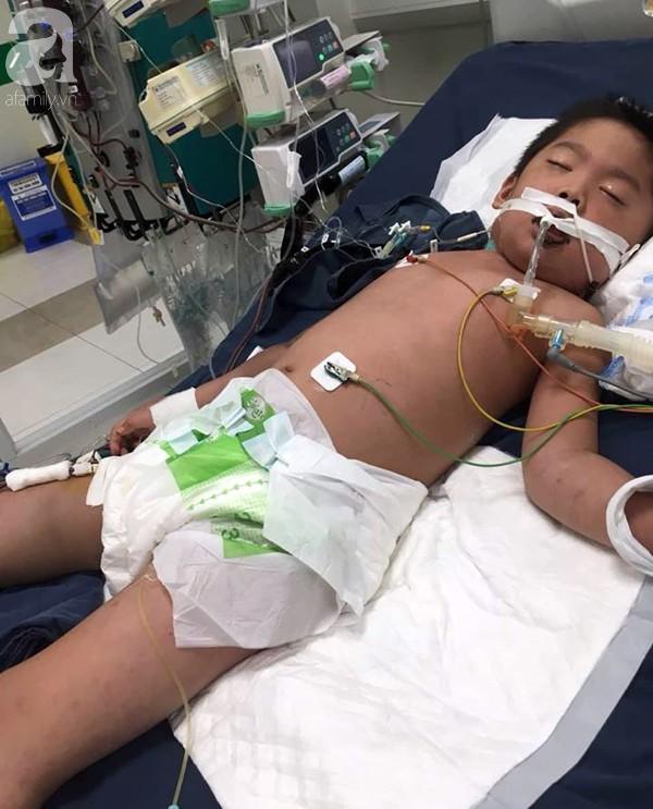 Hà Nội: Bé trai 7 tuổi đang khỏe mạnh bỗng hôn mê vì suy đa tạng, nhiễm trùng máu sau trận sốt cao - Ảnh 3.