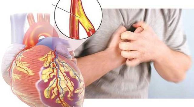 Chuyên gia chỉ rõ những thói quen giúp người trẻ tránh xa bệnh tim mạch - Ảnh 1.