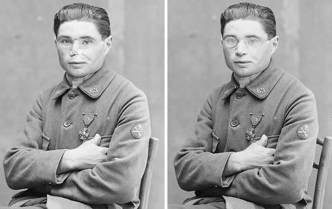 Bằng khả năng điêu khắc, người phụ nữ này đã giúp vô số thương binh Thế chiến I lấy lại cuộc sống bình thường - Ảnh 8.