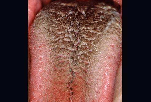 10 bệnh thường gặp ở miệng: Cái số 5 và 6 có thể biến thành ung thư, ai cũng nên cảnh giác - Ảnh 3.