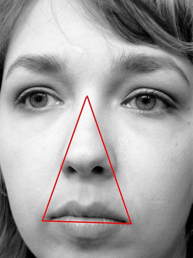 Bé gái suýt mất mạng vì mẹ nặn mụn, và đây là lý do vì sao bạn tuyệt đối nên tránh động chạm đến vùng tam giác tử thần - Ảnh 4.