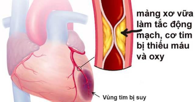Phó Viện trưởng Viện Tim mạch chỉ rõ dấu hiệu chứng tỏ bạn bị thiếu máu cơ tim - Ảnh 2.