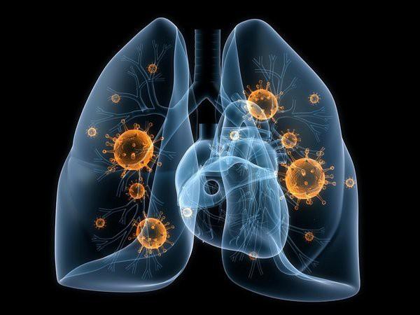 Bị ung thư phổi có thể sống được bao lâu: Bạn nên biết điều này để phòng bệnh hiệu quả - Ảnh 1.