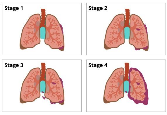 Bị ung thư phổi có thể sống được bao lâu: Bạn nên biết điều này để phòng bệnh hiệu quả - Ảnh 2.