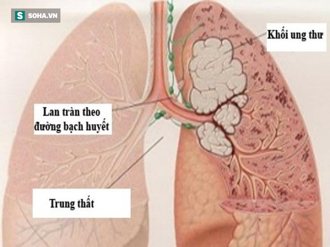 Những dấu hiệu sớm của bệnh ung thư phổi ở nam giới - Ảnh 1.