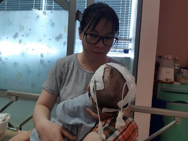 11 lần lên bàn mổ, chưa một lần được về nhà, bé trai 14 tháng tuổi thoi thóp tìm sự sống - Ảnh 1.