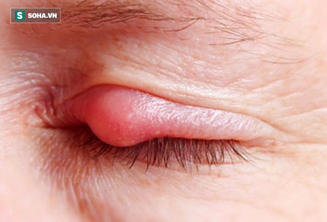 Chữa lẹo mắt nhanh khỏi nhất: Mẹo nhỏ dắt túi khi cần, không để lại sẹo và đơn giản - Ảnh 1.