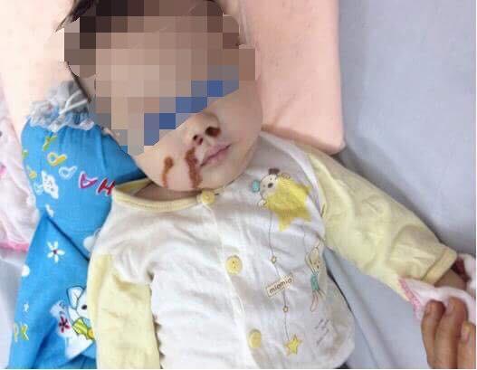 Dì cẩu thả, mẹ vô ý khiến bé 4 tháng tuổi nhập viện cấp cứu - Ảnh 1.