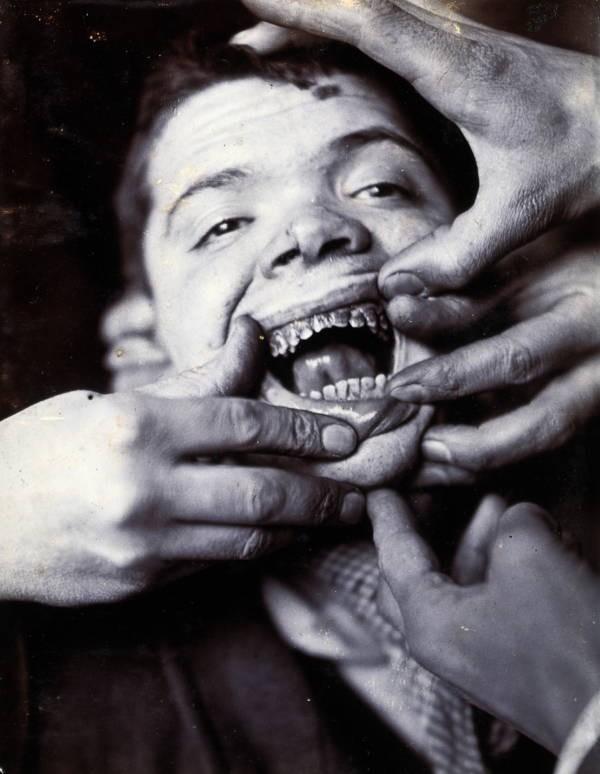 Những tấm hình ám ảnh trong bệnh viện tâm thần 50 năm trước - Ảnh 12.