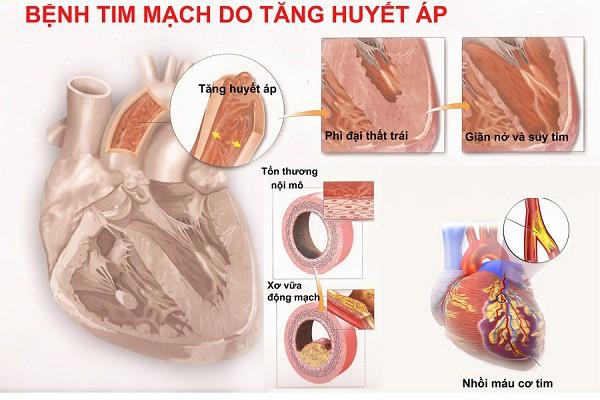 BS khuyến cáo: Người cao huyết áp tuyệt đối không làm điều này kẻo đột quỵ mất mạng có ngày - Ảnh 3.
