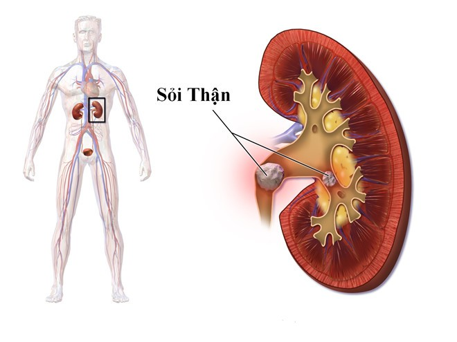 Uống nước khi bụng rỗng: Cơ thể nhận được 7 lợi ích thần kỳ nhờ thải độc, tu sửa tế bào - Ảnh 7.