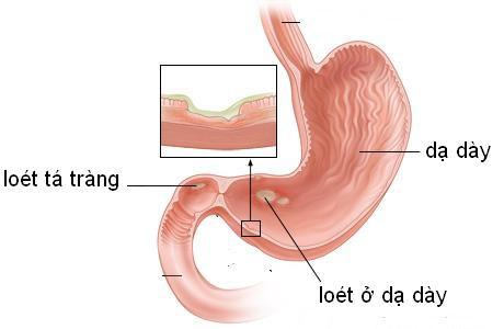 Chủ quan nghĩ đau bụng do viêm loét, đi khám thành ung thư dạ dày - Ảnh 2.
