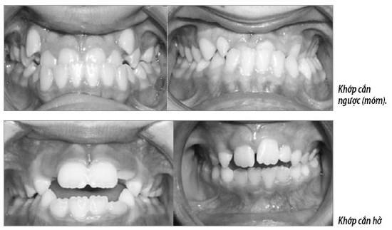 Chỉnh răng cho trẻ khi nào? - Ảnh 1.