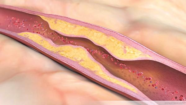 Phòng ngừa tai biến mạch máu não - Ảnh 1.