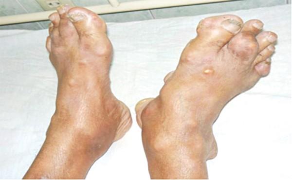 Bệnh gout ở người trẻ - chớ xem thường! - Ảnh 2.