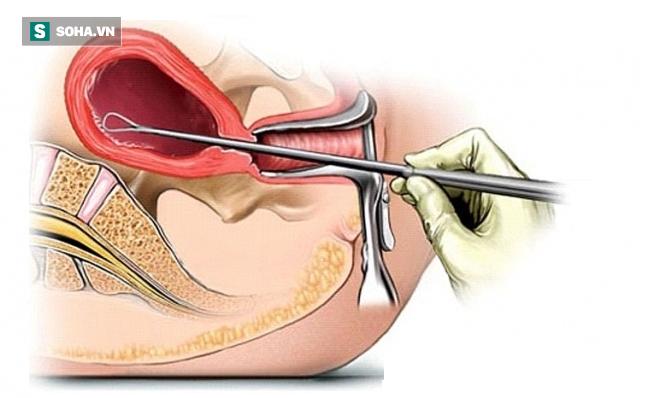 Tắc kinh và đau bụng kèm ra máu: BS sản khoa cảnh báo nguy cơ khiến chị em vô sinh - Ảnh 3.