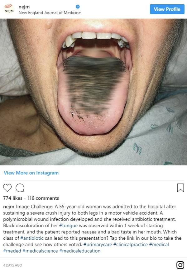 """Người phụ nữ có lưỡi đen sì vì """"mọc lông"""": Chuyên gia cảnh báo thói quen mà nhiều người không để ý cũng là nguyên nhân gây bệnh - Ảnh 1."""