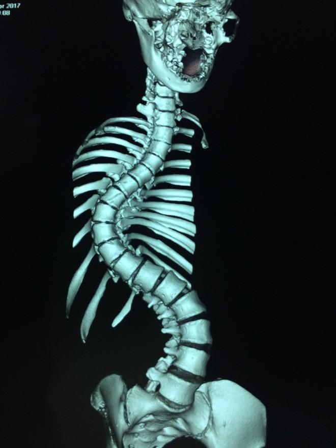 Thiếu nữ Kiên Giang mắc hội chứng hiểm, cột sống cong vẹo hình chữ S khi bắt đầu có kinh nguyệt - Ảnh 1.
