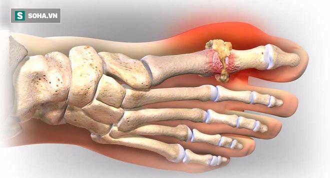 Lời khuyên 5 nên, 4 tránh ai cũng cần dùng để phòng chữa căn bệnh gây đau thấu xương - Ảnh 2.