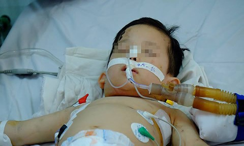 Bé trai 1 tuổi nguy kịch vì bị chó nhà cắn nát mặt mũi - Ảnh 2.