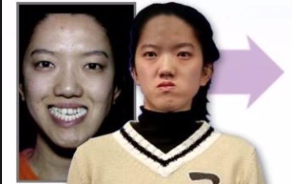Từng bị dè bỉu vì vẻ ngoài xấu xí, cuộc đời của những người này đã hoàn toàn thay đổi nhờ phẫu thuật thẩm mỹ - Ảnh 15.