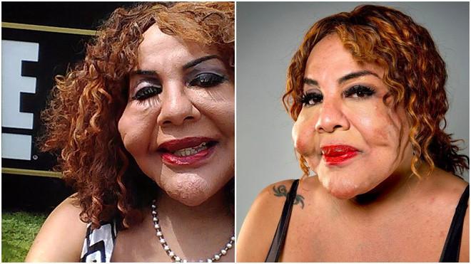 """Bị """"lang băm thẩm mỹ"""" bơm xi măng vào mặt, người phụ nữ biến dạng đến mức ai nhìn cũng phát khiếp - Ảnh 5."""