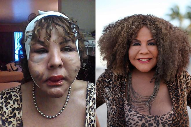 """Bị """"lang băm thẩm mỹ"""" bơm xi măng vào mặt, người phụ nữ biến dạng đến mức ai nhìn cũng phát khiếp - Ảnh 7."""