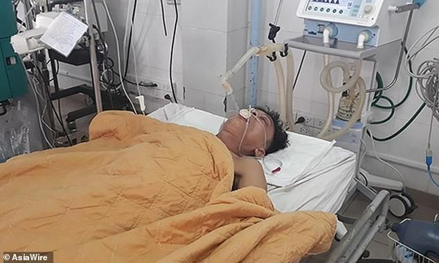 Báo nước ngoài đồng loạt đưa tin bệnh nhân Việt Nam được cứu sống nhờ bơm bia vào người - Ảnh 2.