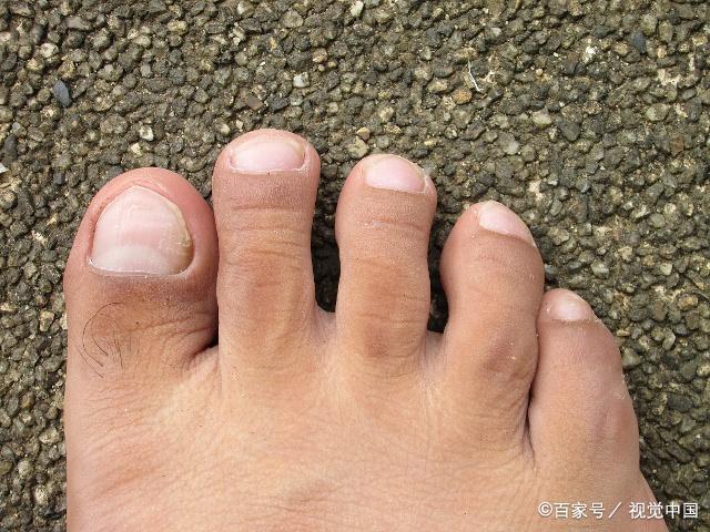 Bàn chân xuất hiện cùng lúc 3 dấu hiệu này: Hãy cảnh giác vì có thể thận đang có bệnh - Ảnh 3.