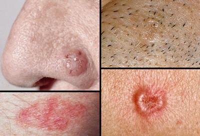 Có dấu hiệu này ở chân điều trị 1,2 tháng không hết phải nghĩ đến bệnh ung thư  - Ảnh 2.