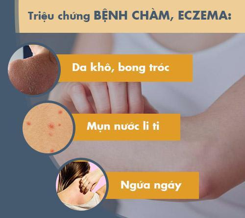 Bệnh chàm eczema: Dấu hiệu và cách chữa chặn đứng nguy cơ tái phát - Ảnh 1.