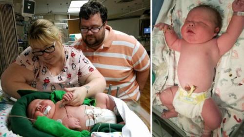 """Bác sĩ 30 năm tay nghề """"sốc nặng""""khi đỡ đẻ cho một trẻ sơ sinh khổng lồ nặng gần 7 kilogram - Ảnh 1."""