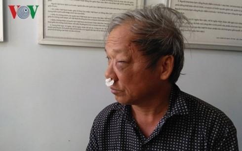 Manh mối về 2 đối tượng truy sát PV Đài truyền hình Việt Nam tại quán ăn - Ảnh 1.