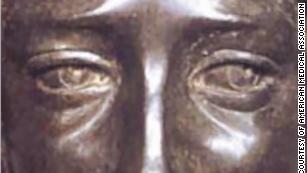 Giải mã thiên tài Leonardo da Vinci: Vì mắc bệnh lạ nên có thể vẽ xuất chúng đến vậy - Ảnh 2.