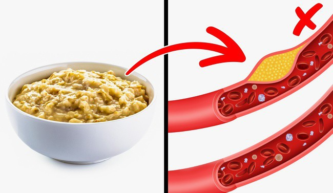 Điều gì sẽ xảy ra với cơ thể bạn nếu ăn yến mạch mỗi ngày? - Ảnh 6.