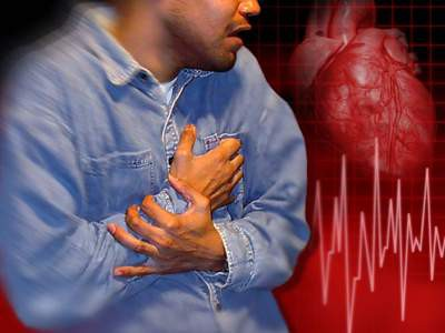 Lối sống rất tệ làm gia tăng bệnh đột quỵ: Rất nhiều bạn trẻ hồn nhiên mắc mà không biết - ảnh 1