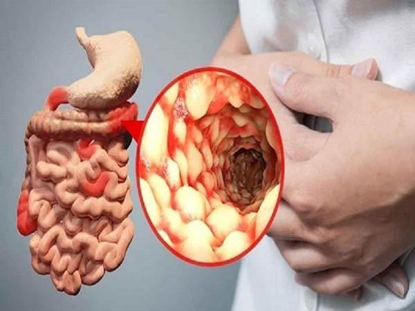 Người mắc bệnh này có nguy cơ cao bị ung thư đại tràng: BS dặn dấu hiệu bất thường cần nhớ - Ảnh 2.